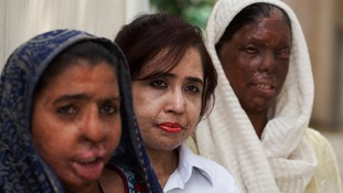 Acid attack survivors in Pakistan attend a gathering to mark the day in in Karachi, Pakistan