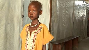 Six-year-old Dalia is suffering from severe malnutrition.