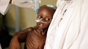 A doctor feeds a malnourished child in Nigeria.
