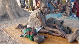 Fighting Famine: Disease rife as aid struggles to reach South Sudan's starving families