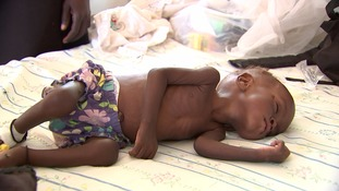 A child facing starvation in South Sudan.
