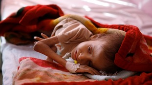 A malnourished child waits for treatment at a feeding center in Sanaa.