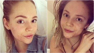 Rachel bravely shares pictures of her skin's journey
