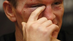 A teary eyed Hatton announced his retirement during the post-fight press conference.