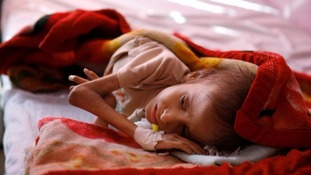 A malnourished child at a feeding centre in Sanaa.