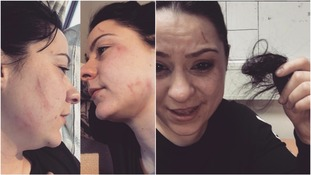 Lucy Spraggan shared these images after the alleged attack