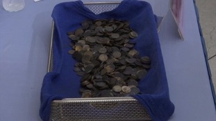 Surgeons were shocked to find 915 coins in Bank's stomach