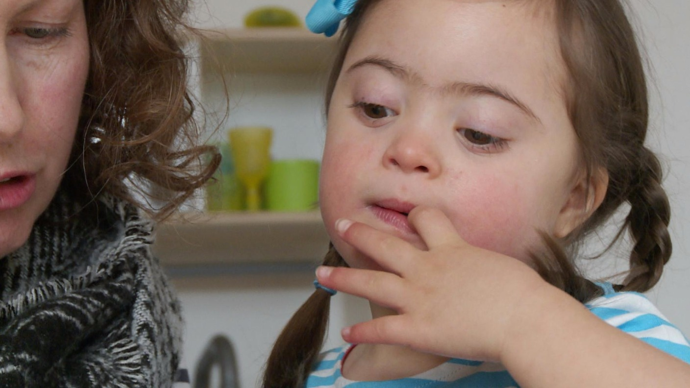 the different characteristics of down syndrome and how to manage them Down syndrome is a condition in which a baby is born with an extra chromosome 21  the characteristics of down syndrome include low muscle  a child may need speech therapy to help them gain .