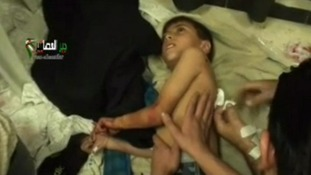 A young boy was among those injured by the bomb