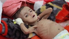 Around 500,000 children in Yemen are suffering from severe acute malnutrition.