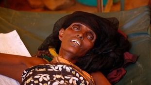 This elderly woman in Somalia shows the extent of the crisis there.
