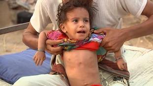 Maram is battling severe malnutrition.