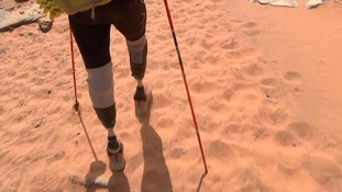 Duncan's new prosthetic legs have proved their worth so far.