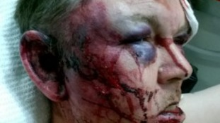 Police release shocking picture of man beaten and robbed for just £60