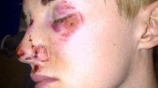 Photographs show the extensive bruising, cuts and grazes he suffered to his face