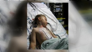 boy asleep after heart surgery