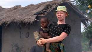 Albinos face the fear of being harvested for their bones in Malawi