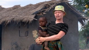 Alfred Misoya was attacked at home by machete-wielding albino hunters