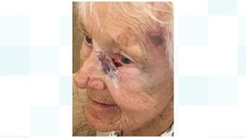 The 89-year-old woman was attacked by a robber in her own home