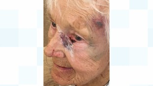 Elderly lady injured in robbery