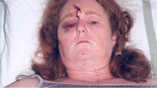 Domestic abuse survivor joins campaign