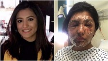 Woman doused with acid on her 21st birthday