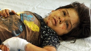 A girl lies in hospital after the attack.