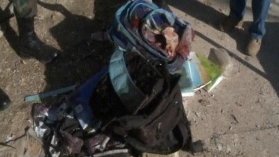 A bloody school bag outside the school in Damascus