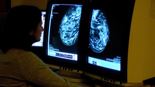 Cancer diagnoses now 'more common than marriage' in the UK