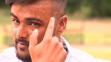 Acid attack victim Samir Hussain