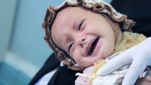 Yemen in grip of world's worst cholera outbreak