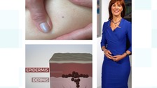 Pam Royle has opened up on her skin cancer scare