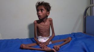 Yemen's severely starved children now threatened by world's worst cholera outbreak