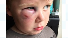 Appeal after 4-year-old boy attacked by teenagers