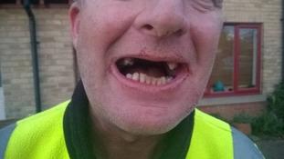 Milkman loses teeth in robbery