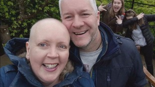 Lyn Magill lost her hair while being treated for cancer.