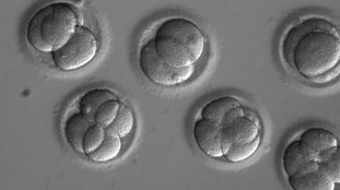 Human embryo editing breakthrough could eradicate thousands of inherited diseases
