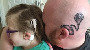 Dad gets tattoo of his daughter's brain shunt