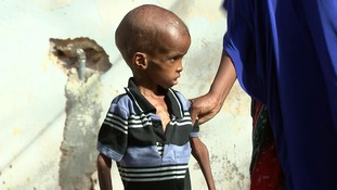 Malnutrition particularly in children and the elderly is clear to see.