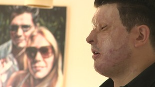 Mr Christopheros is calling for tougher sentences for those who carry out vicious acid attack crimes.
