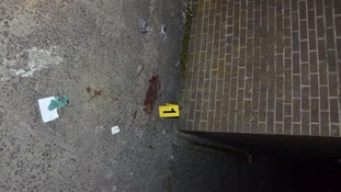"Police have released two new images from the scene of a shooting in Londonderry.  A 33-year-old man was shot in the legs and abdomen by a masked gang in the Lisfannon Park area of the city on Tuesday evening.  It's understood young girls witnessed the paramilitary-style attack and have been left in a distressed state.  Police have described the shooting as ""brutal and horrific"".  The new images include a close up of one of the bullets that were shot into his body."