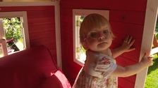 Surgeons dismantle and rebuild little girl's head
