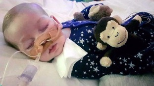 Charlie was born with a rare genetic disease