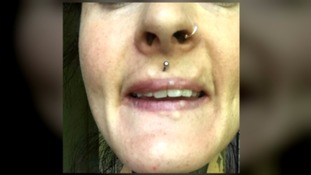 Not long after the procedure, hard lumps formed around Camille's mouth.