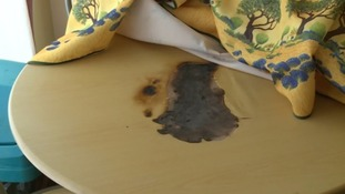 Magnifying glass causes fire in Dorset pensioner's home
