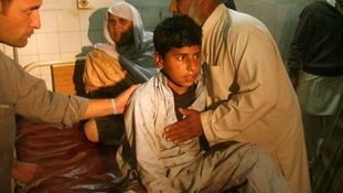 A boy, injured in a bomb blast waits for treatment at a hospital in Peshawar.