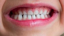 Child's teeth