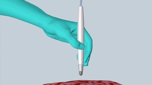 Scientists create 'pen' that can detect cancer in ten seconds