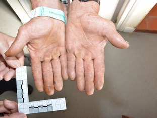Evidence picture of victim's hands