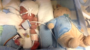 Ethan Bird from Norfolk was born weighing just 1lb 1 ounce.
